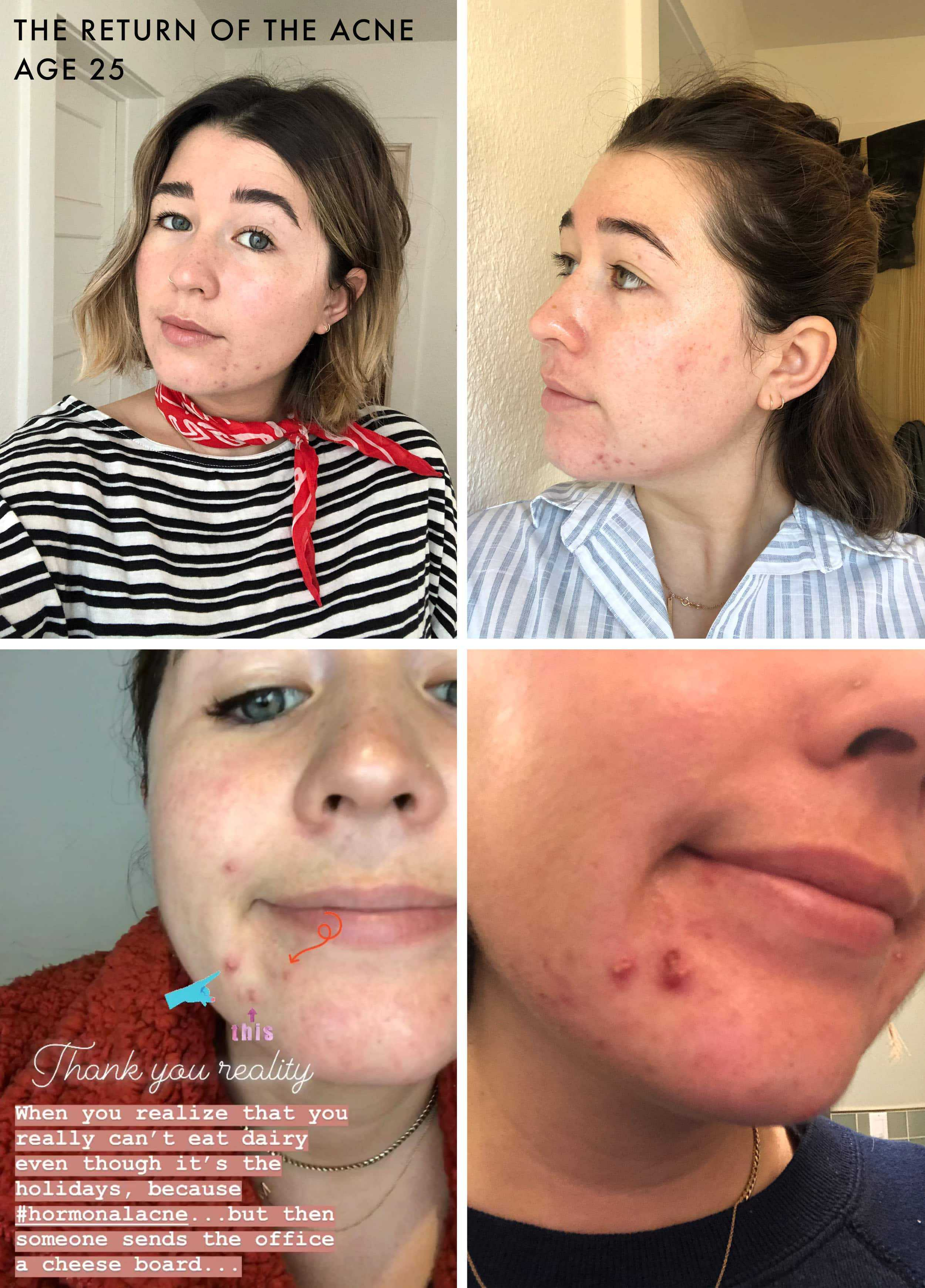 How Sara Saved Her Skin Finally Cured Her Adult Acne Emily
