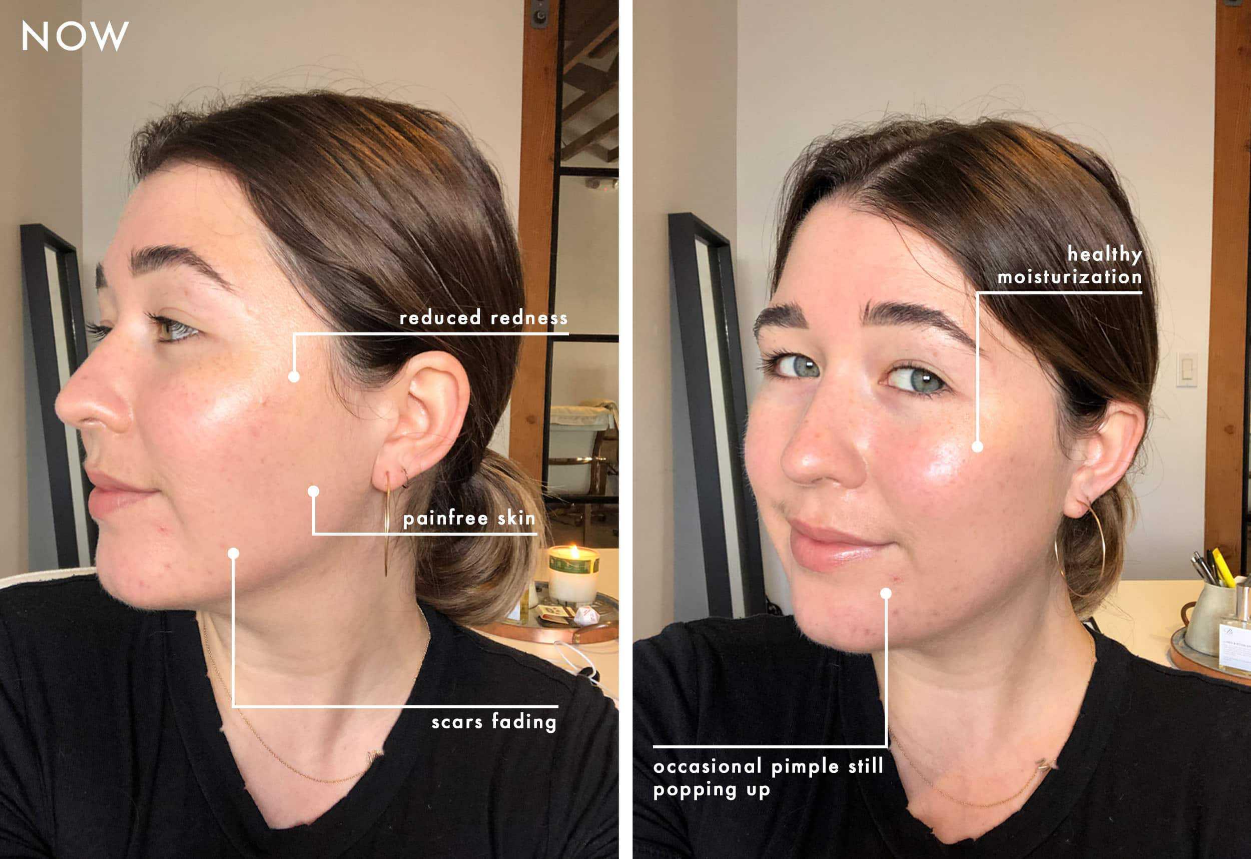 Emily Henderson Sara Beauty Skincare Graphic Now Sara 1